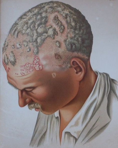 de ziekte van hedel, meer haar op je l*l dan op je schedel. chromo